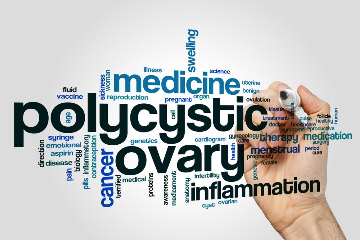 What are the Common Symptoms of Polycystic Ovary Syndrome PCOS